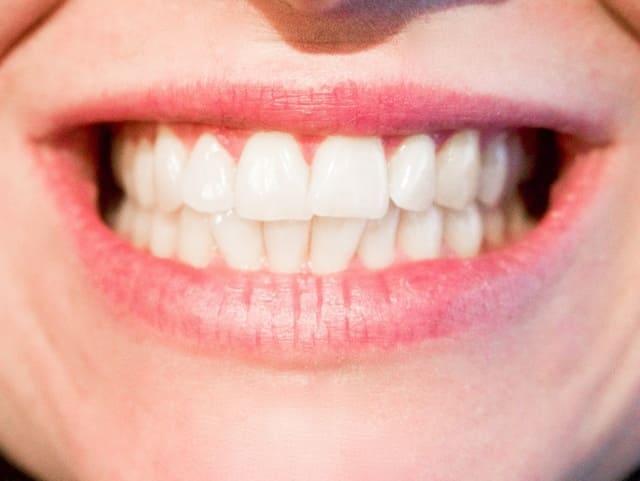 Dentifrice-blanchissant